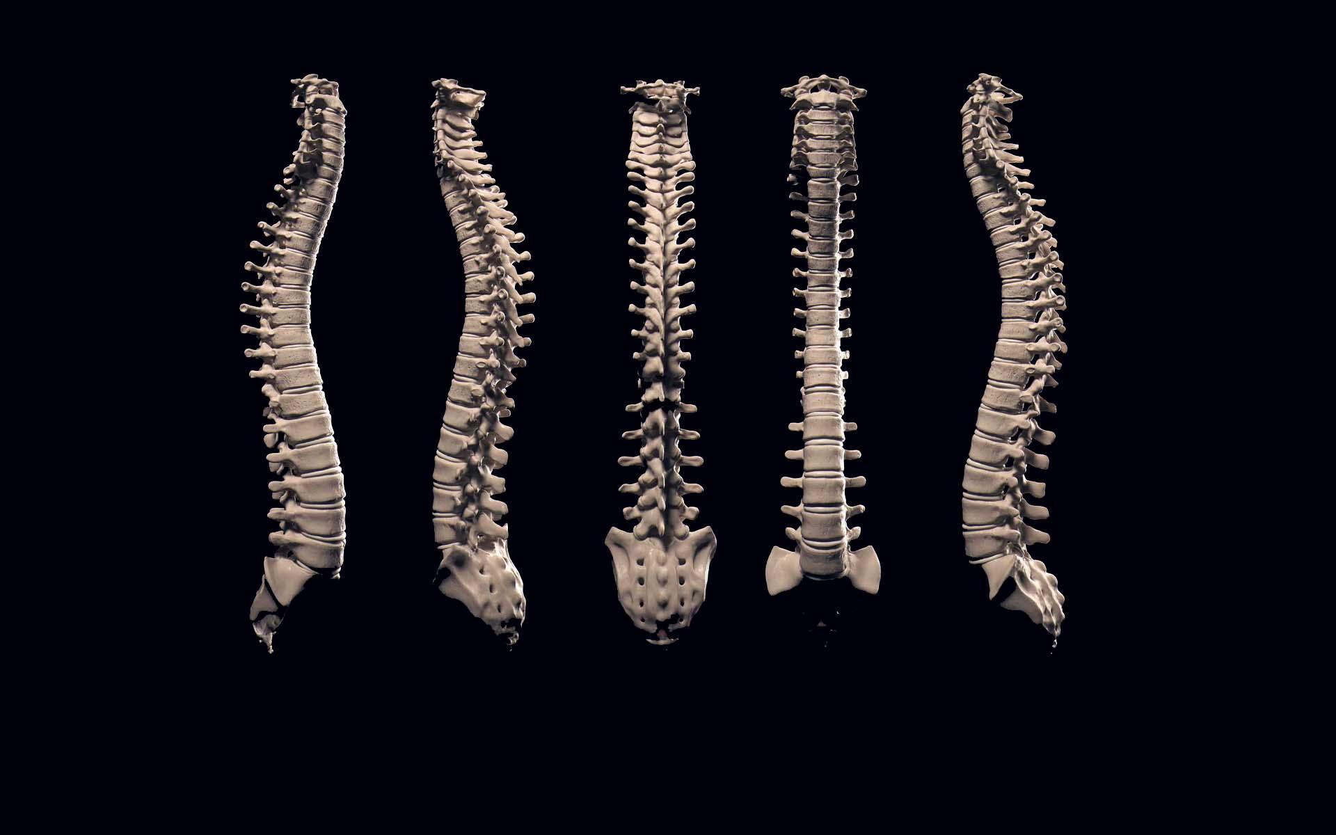 Практика: «Восстановление костной ткани позвоночника»