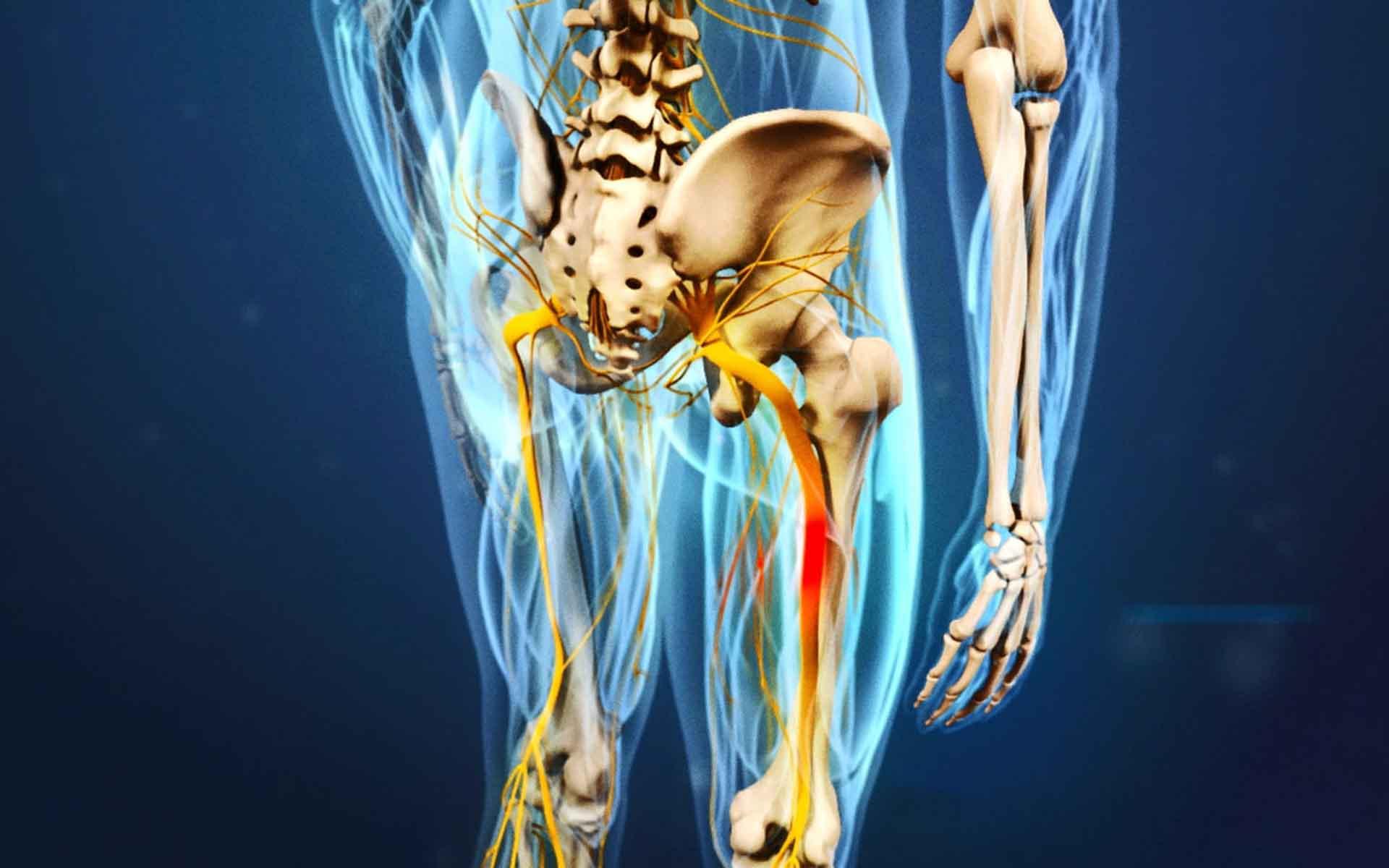 Болит седалищный нерв, что делать?