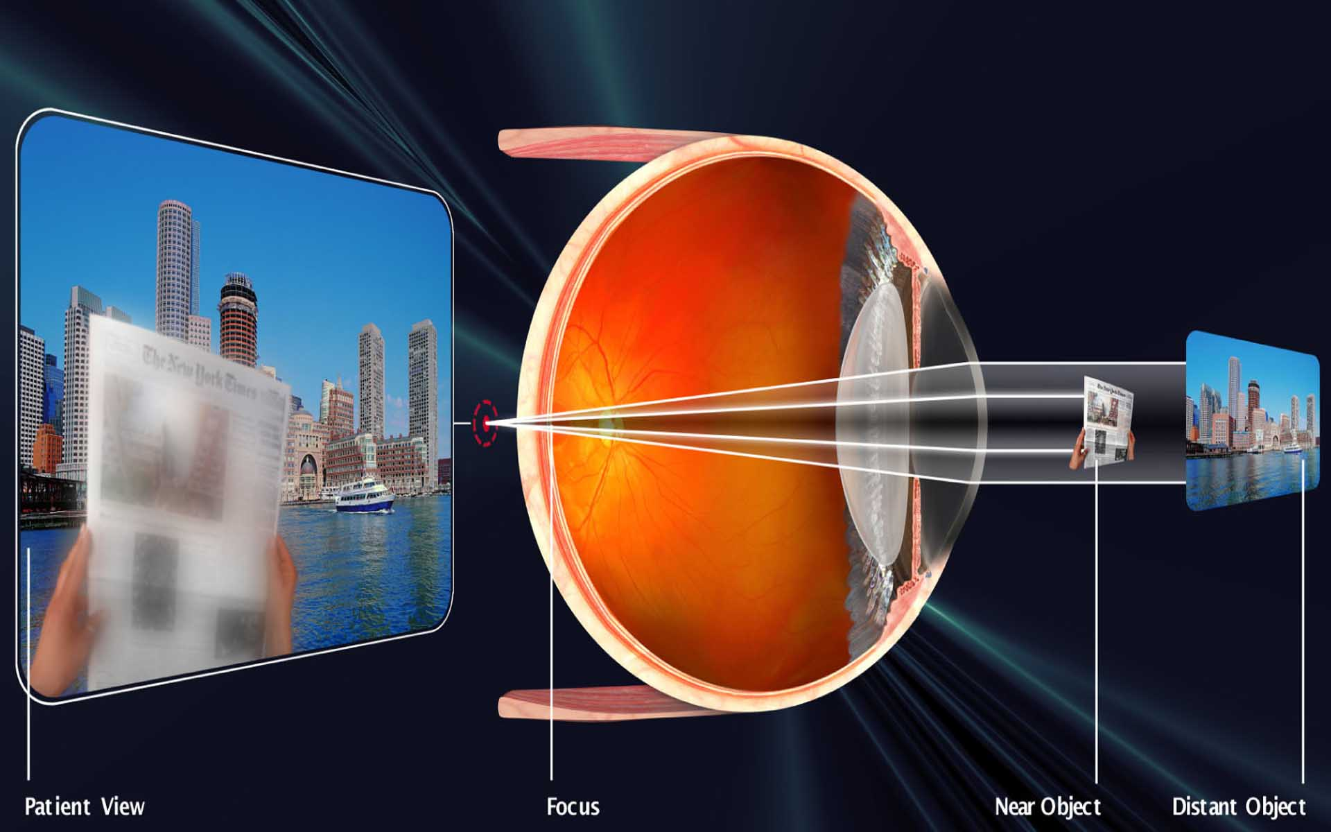 Причины астигматизма глаз