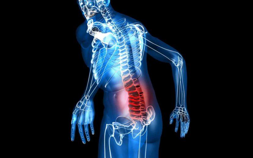 Причины болей и прострелов в пояснице