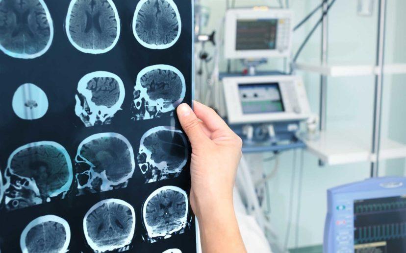 Нравственность и болезни.Рак мозга.