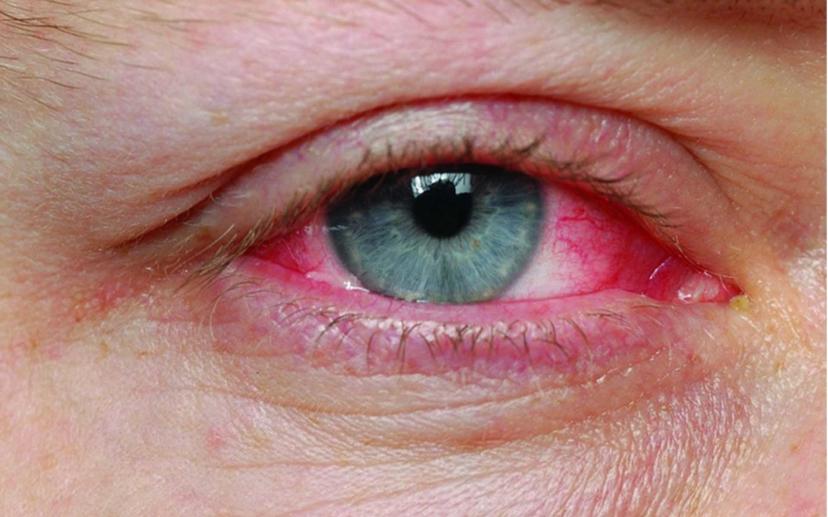 Глаукома. Постоянно красные глаза.
