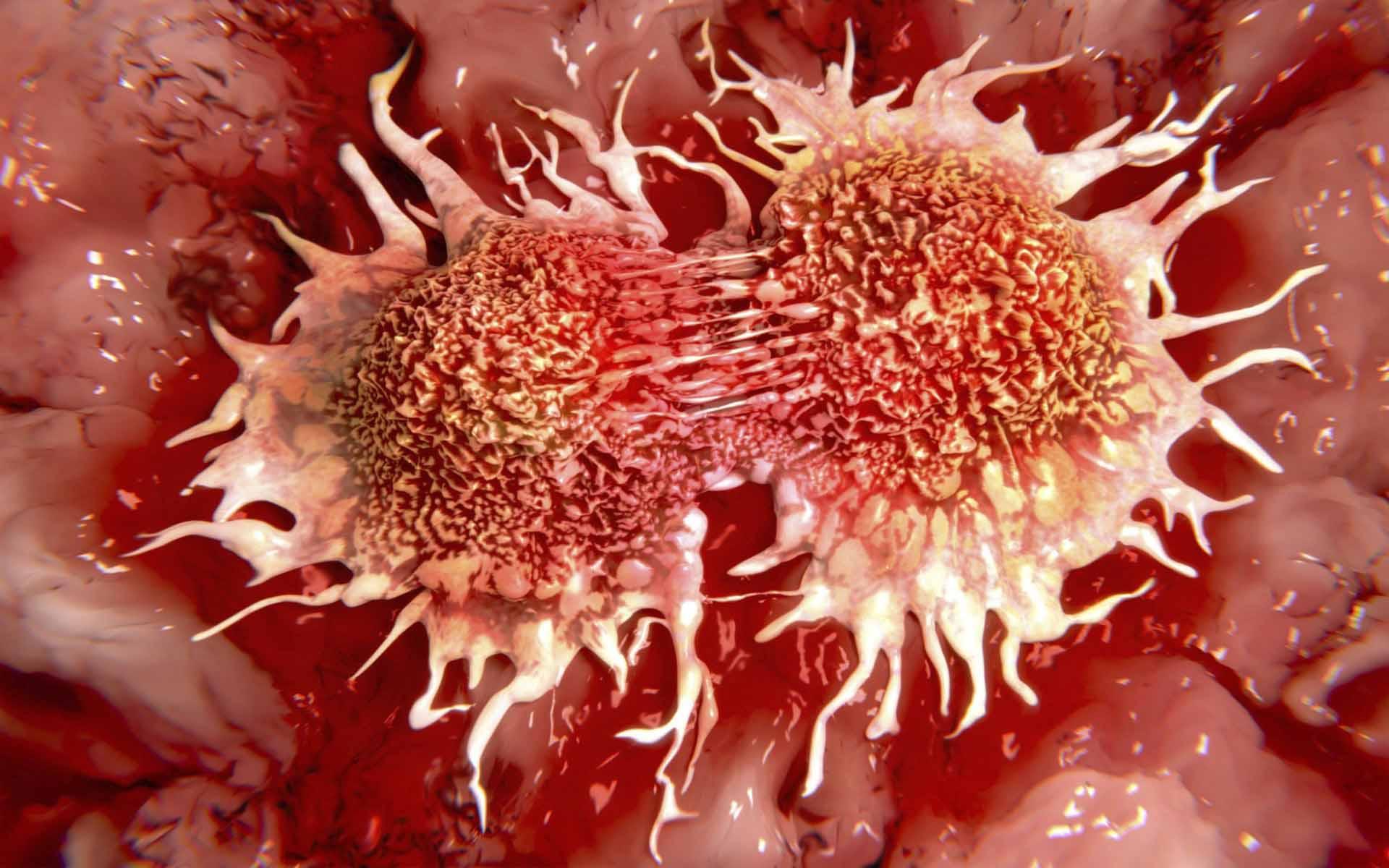 Что может вызвать онкологию
